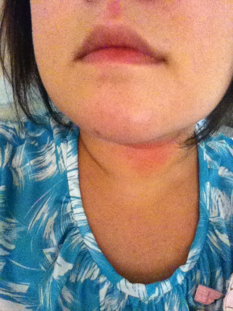 Heat rash! Its been so hot! 37 degrees celsius today!