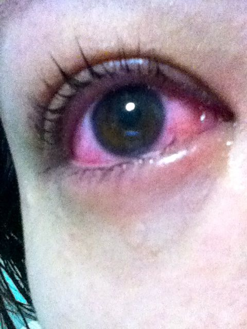 Curly lashes at the expense of bloodshot eyes